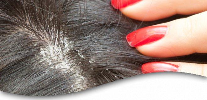 Herbal-Solutions-um-Haar-Kleie-loszuwerden